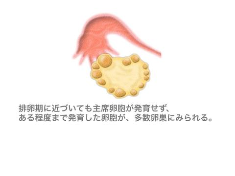 AMH 説明画像.002.jpg